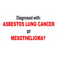 Oberheiden Law - Mesothelioma Attorneys